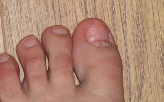 Восстанавливается ли ноготь после грибка и как он растет