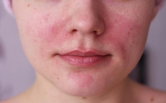 6 эффективных мазей от сосудистых звездочек на лице
