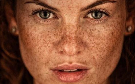 Гиперпигментация кожи