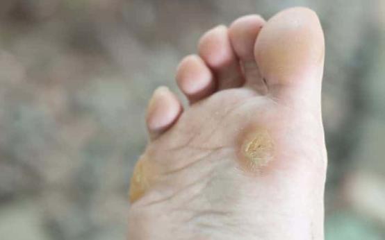 Причины появления бородавок на ногах