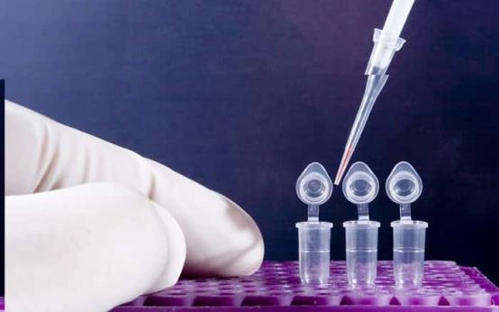 Что такое анализ ПЦР на ВПЧ