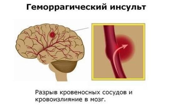 Восстановление функций после геморрагического инсульта