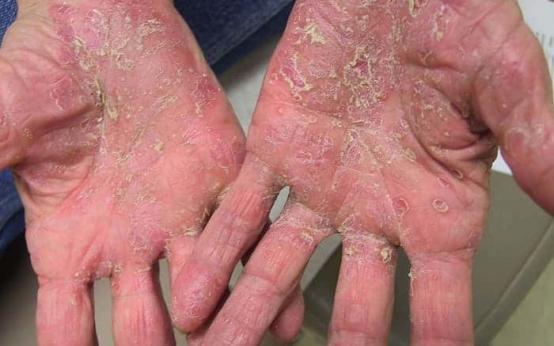 Чем лечить псориаз на руках?