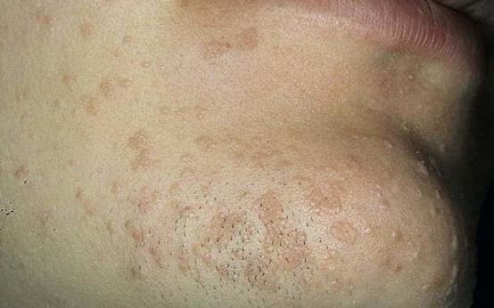 Бородавка на лице