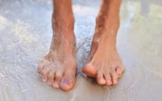Причины почему сильно потеют ноги у мужчин