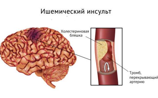 Основные симптомы ишемического инсульта