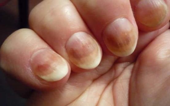 Как быстро и эффективно вылечить грибок ногтей на руках