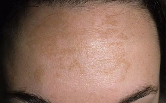 Как после родов избавиться от пигментации на лице