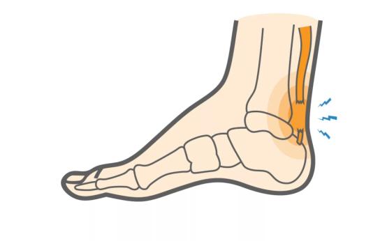 Причины боли в ахилловом сухожилии и способы лечения ахиллита