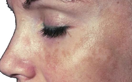 Причины пигментных пятен на лице и народные способы лечения