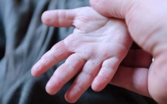Экзема: причины заболевания на теле