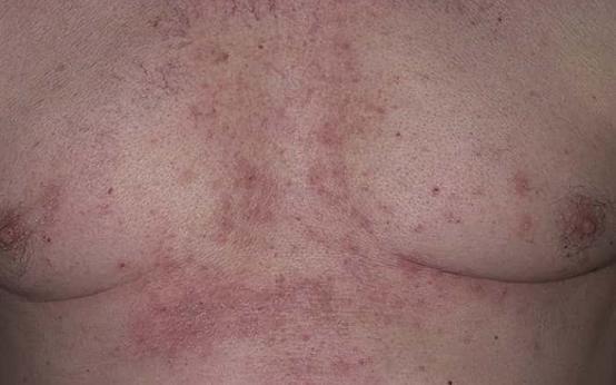 Причины грибка под грудью и методы лечения