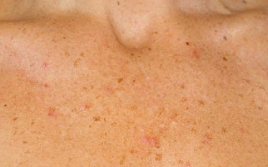 Причины появления пигментных пятен на теле и способы лечения