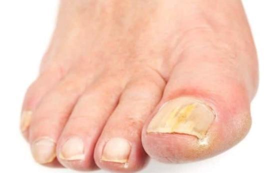 Как вылечить грибок ногтей на ногах подручными средствами