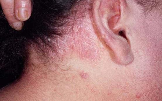 Псориаз — на голове выпадают ли волосы