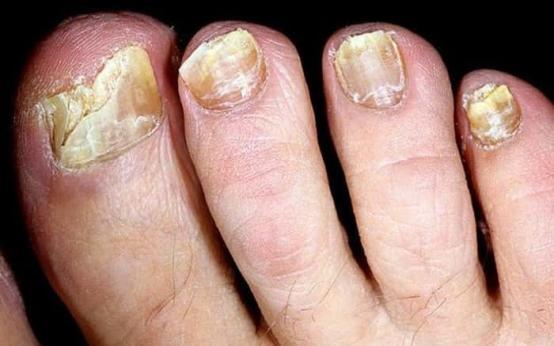 Что такое онихомикоз или грибок ногтей