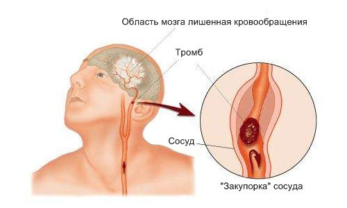 Острый ишемический инсульт