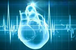 Сильное сердцебиение при инсульте