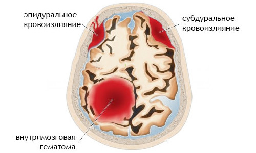 Виды кровоизлияний в мозг