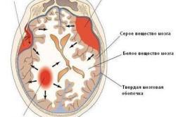 Виды внутричерепных кровоизлияний