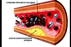 Атеросклероз - причина инсульта