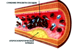 Атеросклероз - причина нарушения кровообращения