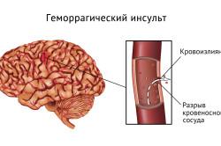 Разрыв сосудов при геморрагическом инсульте