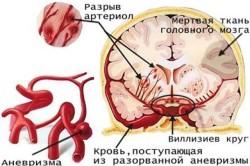Схема геморрагического инсульта