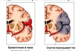 Основные виды инсульта