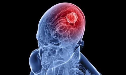 Инсульт в области головного мозга