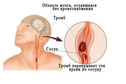 Поражение сосудов головного мозга при нарушении мозгового кровообращения