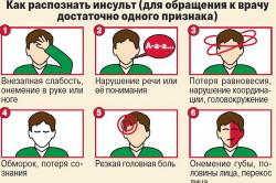 Основные признаки инсульта