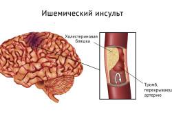 Схема ишемического инсульта
