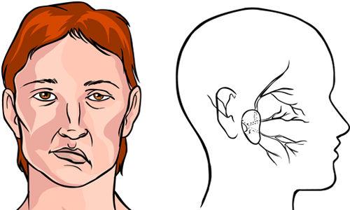 Проблема паралича после инсульта