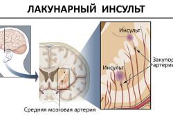 Течение лакунарного инсульта