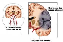 Схема развития ишемического инсульта