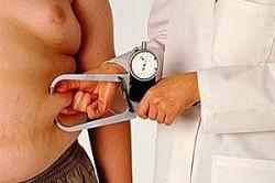 Регулирование массы тела при инсульте