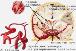 Схема внутримозгового кровоизлияния