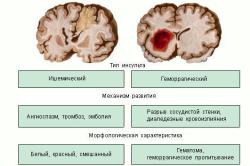 Типы инсультов