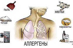 Аллергены, вызывающие астму