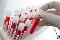 Сдача анализа крови при бронхиальной астме