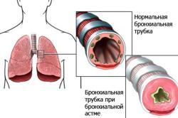 Особенности бронхиальной астмы
