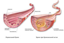 Здоровый бронх и при бронхиальной астме
