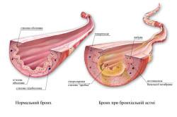 Здоровый бронх и бронх при бронхиальной астме
