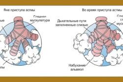 Схема кашлевой астмы