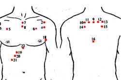 Зоны накладывания пиявок для лечения астмы