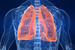 Эмфизема легких - осложнение аллергической астмы