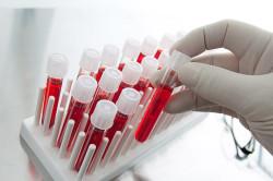 Анализ крови для диагностики на сахар