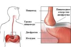 Схема грыжи пищевода