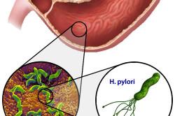 Helicobacter pylori вызывают болезнь